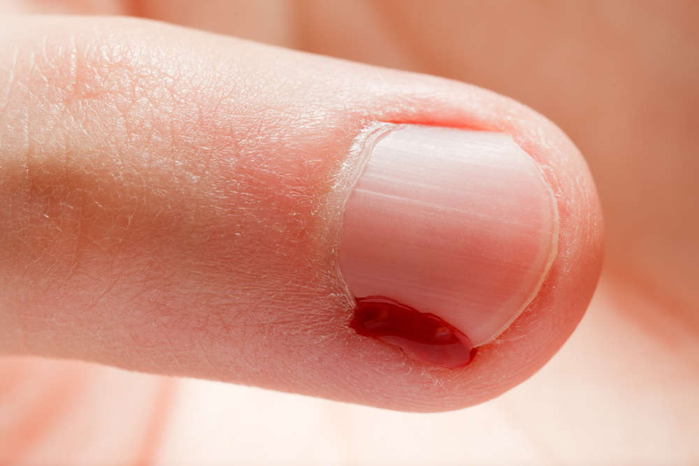 What Causes Hangnails – And How to Avoid Them | Todays Secrets