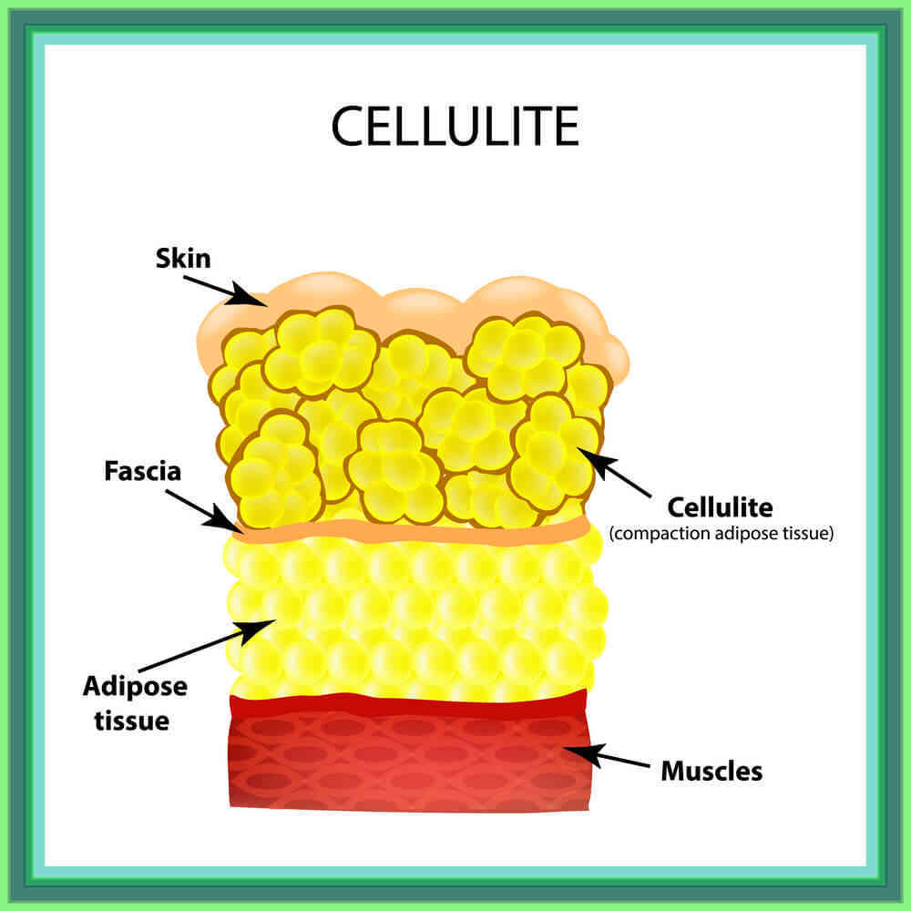 how to get rid of cellulite on stomach naturally