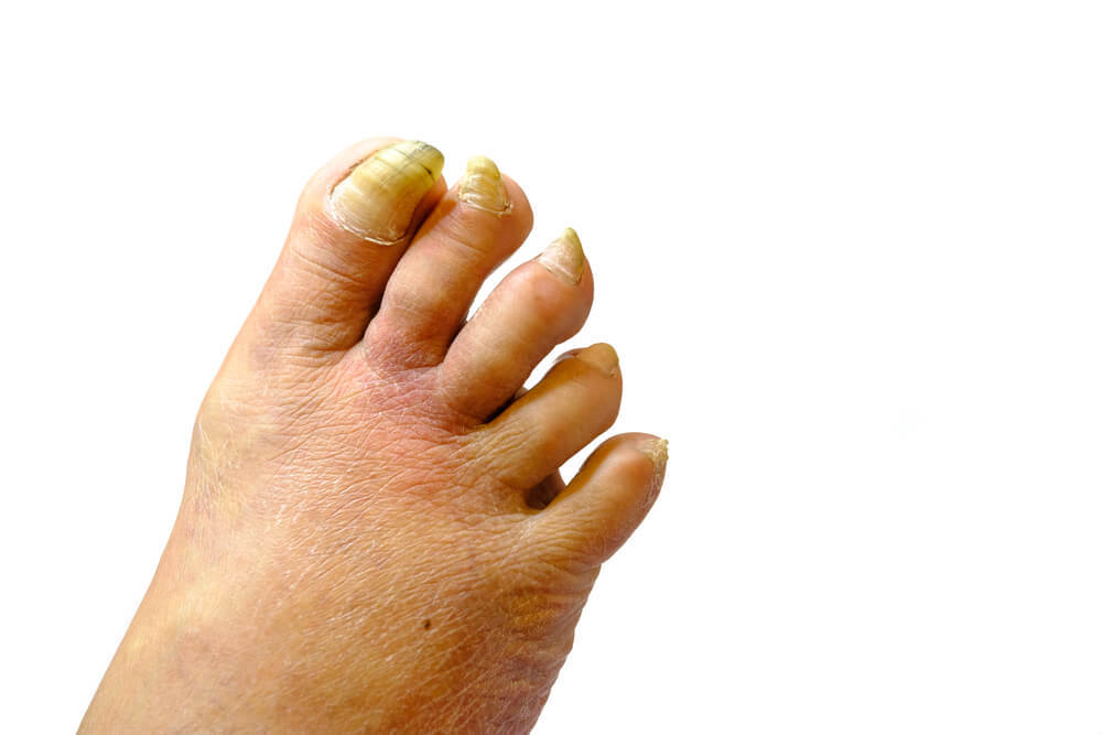 How to Get Rid Of an Ingrown Toenail Overnight - Today\'s Health ...