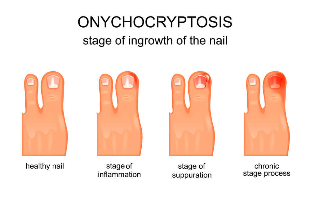 ingrown toenail stages