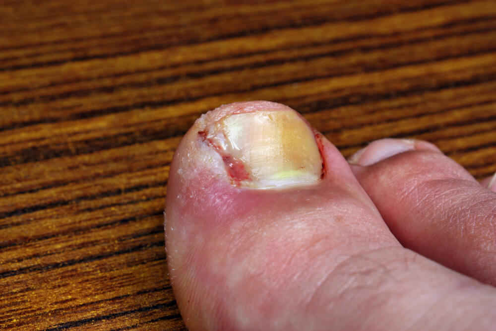 how to get rid of an ingrown toenail overnight